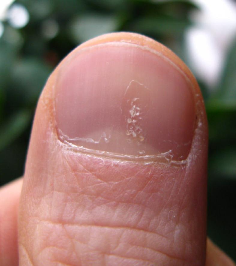 Pitting_Nails