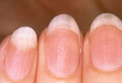 Vertical_Ridges_Nails