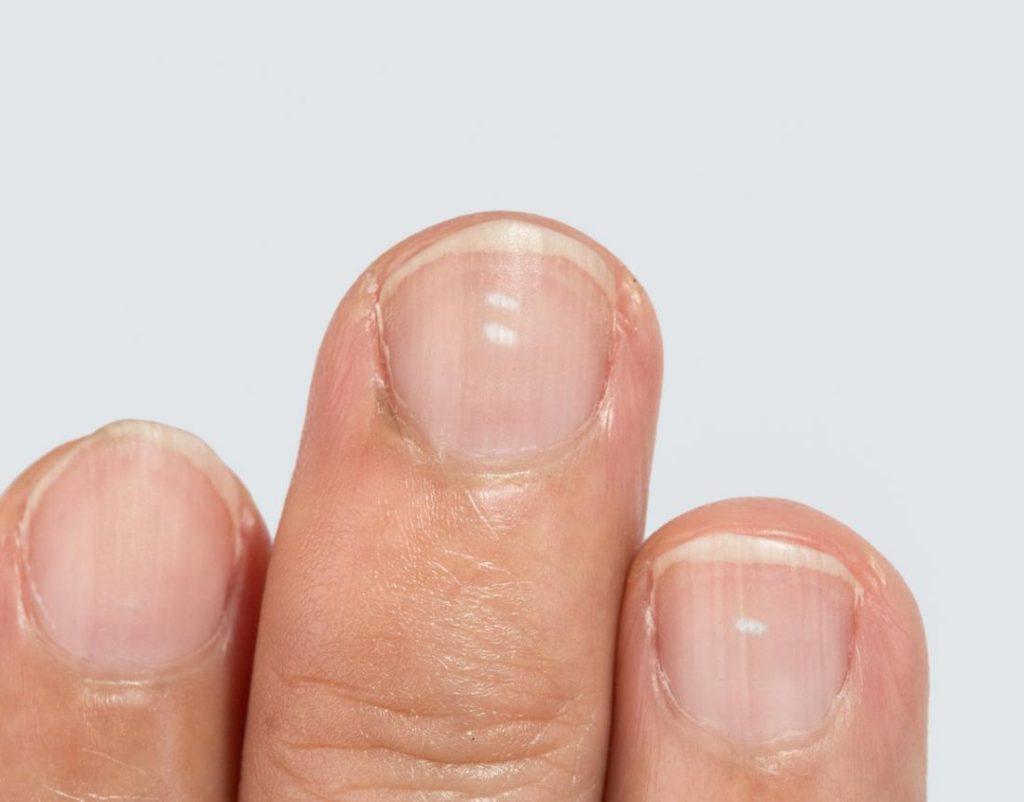 White_Spots_Nails