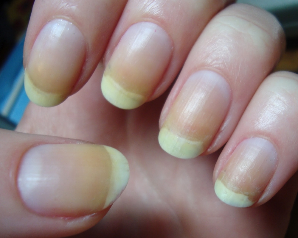 9 Health Warning Signs Revealed By Looking At Your Nails